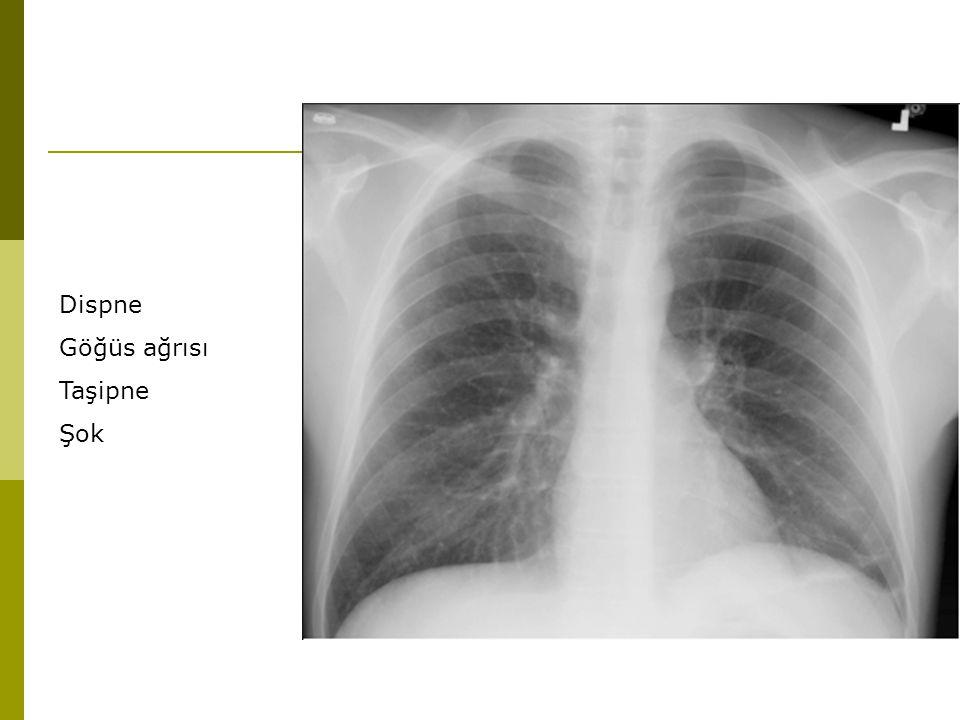 Dispne Göğüs ağrısı Taşipne Şok