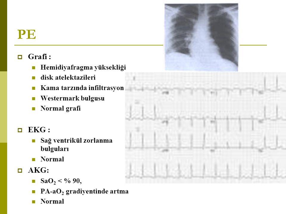 PE Grafi : EKG : AKG: Hemidiyafragma yüksekliği disk atelektazileri