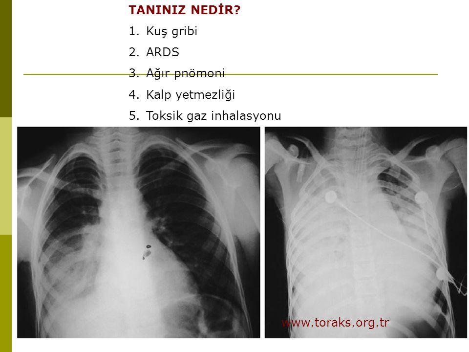 TANINIZ NEDİR Kuş gribi ARDS Ağır pnömoni Kalp yetmezliği Toksik gaz inhalasyonu www.toraks.org.tr