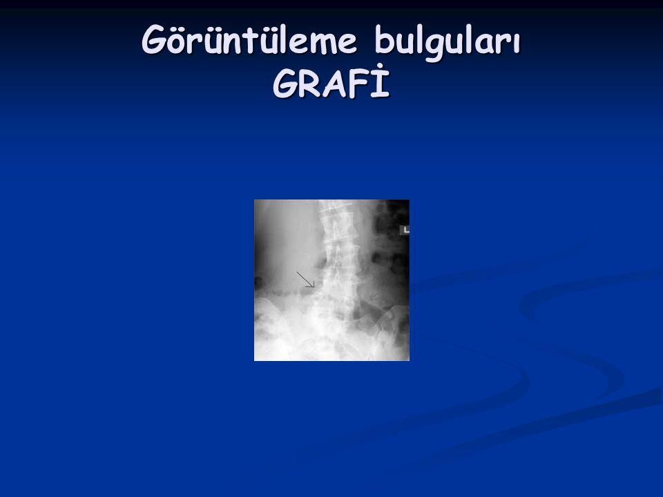 Görüntüleme bulguları GRAFİ