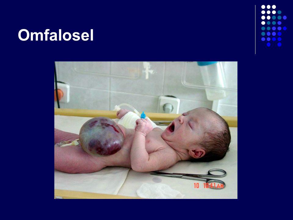 Omfalosel