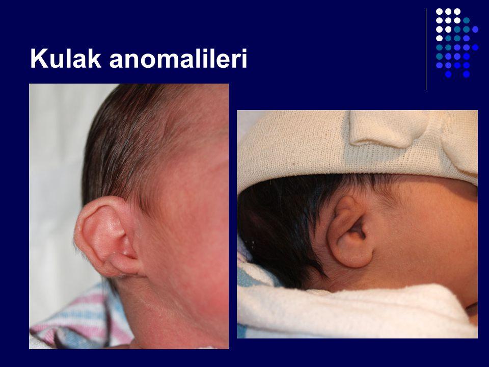Kulak anomalileri