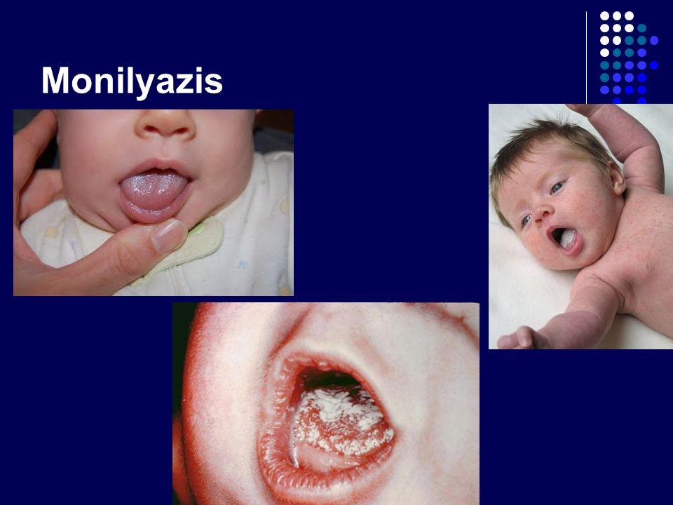 Monilyazis