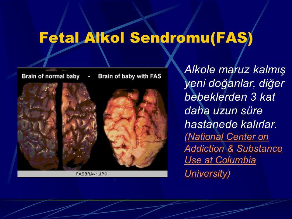 Fetal Alkol Sendromu(FAS)