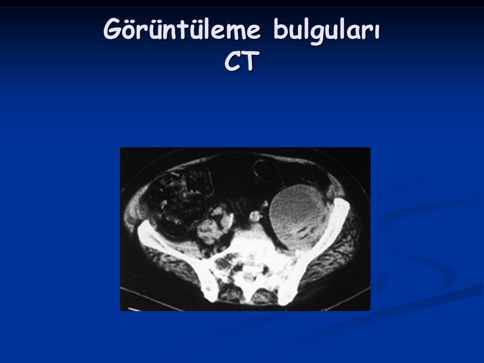 Görüntüleme bulguları CT