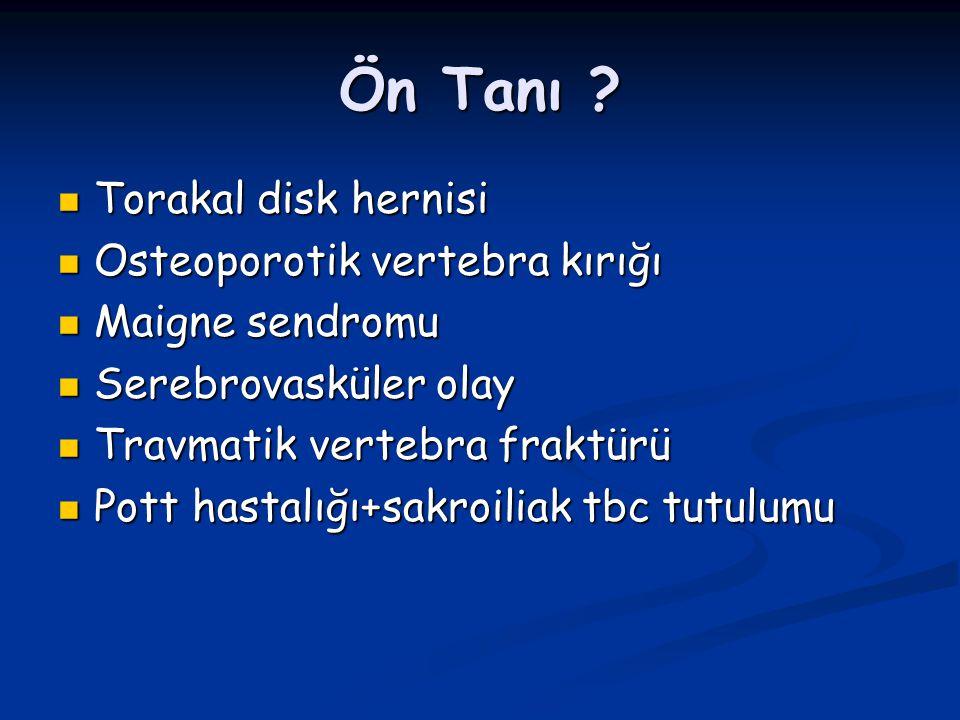 Ön Tanı Torakal disk hernisi Osteoporotik vertebra kırığı