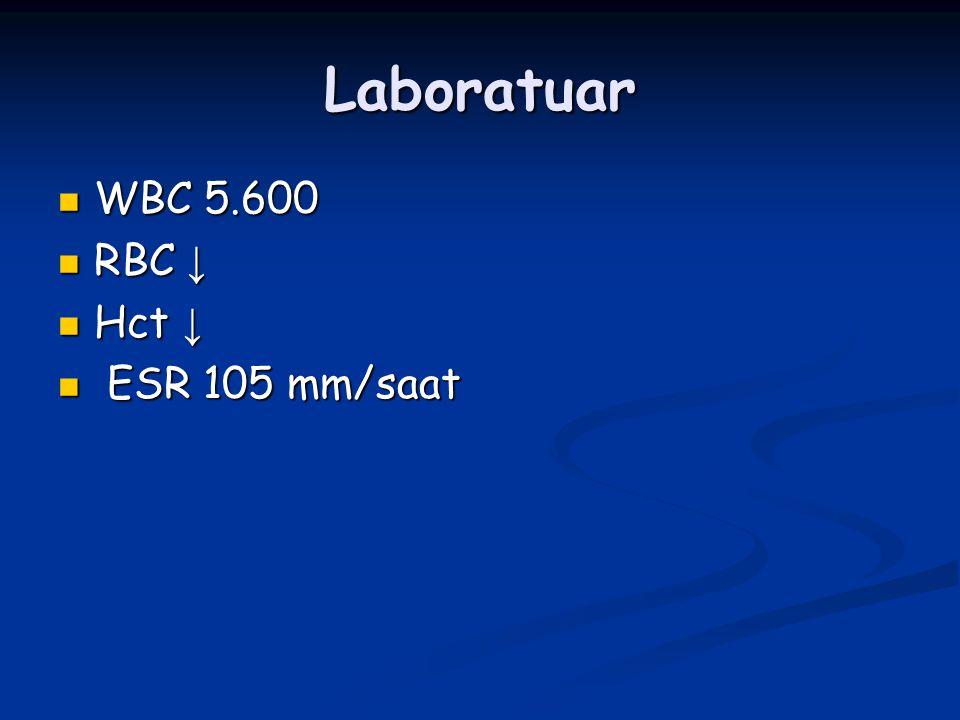 Laboratuar WBC 5.600 RBC ↓ Hct ↓ ESR 105 mm/saat