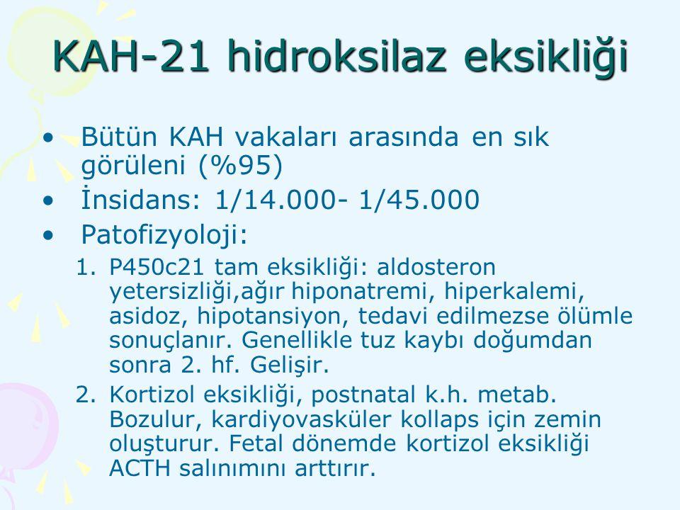 KAH-21 hidroksilaz eksikliği