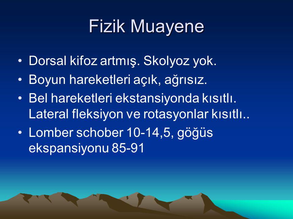 Fizik Muayene Dorsal kifoz artmış. Skolyoz yok.