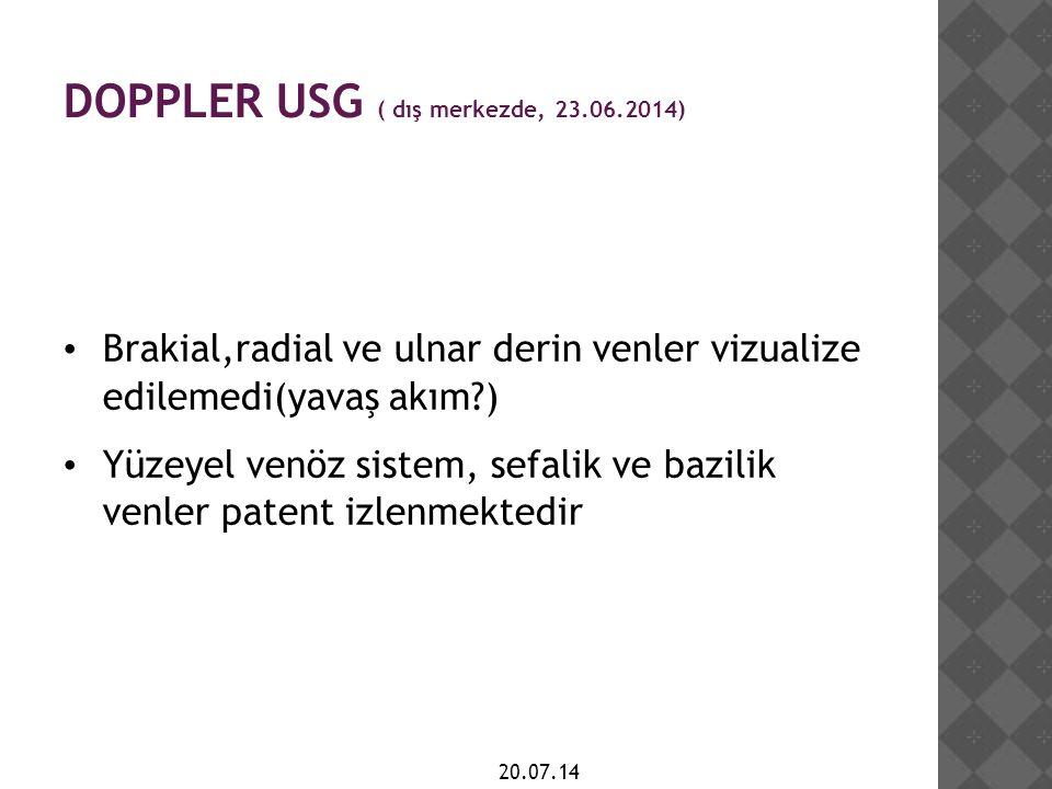 DOPPLER USG ( dış merkezde, 23.06.2014)