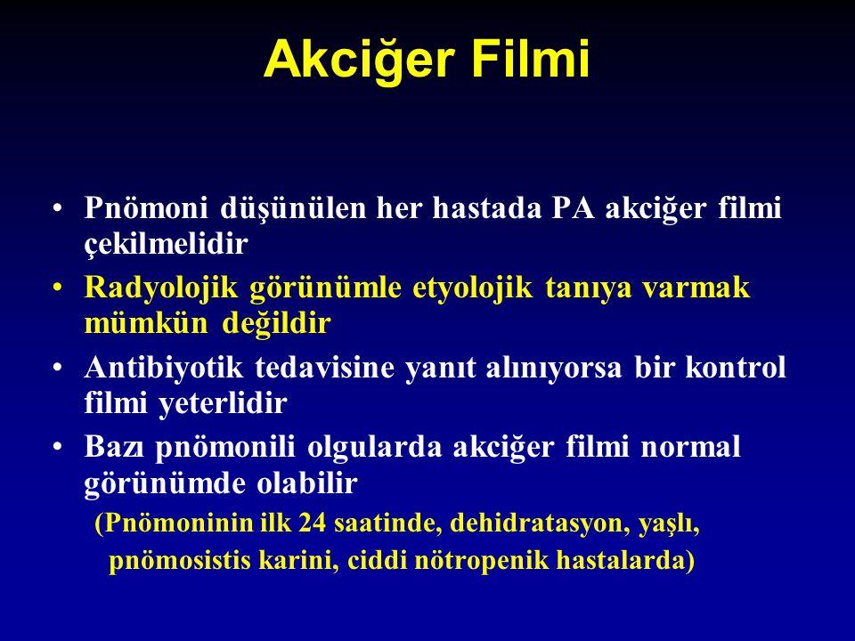 Akciğer Filmi Pnömoni düşünülen her hastada PA akciğer filmi çekilmelidir. Radyolojik görünümle etyolojik tanıya varmak mümkün değildir.