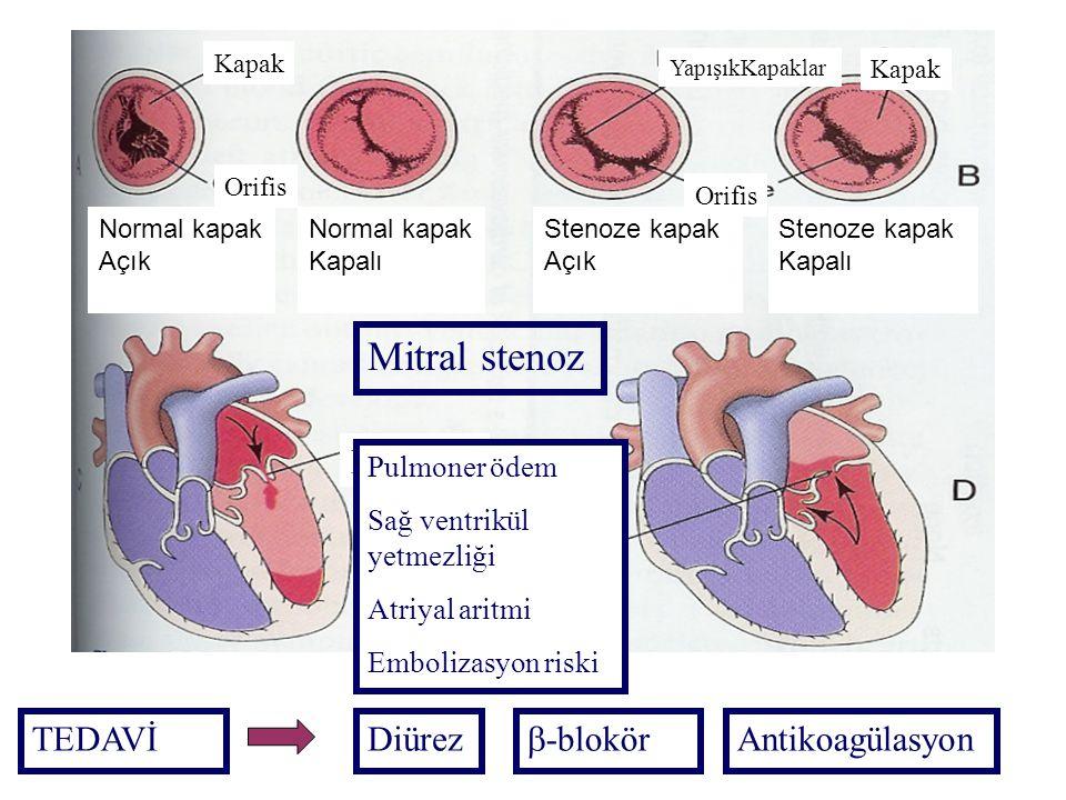 Mitral stenoz MS TEDAVİ Diürez -blokör Antikoagülasyon Pulmoner ödem