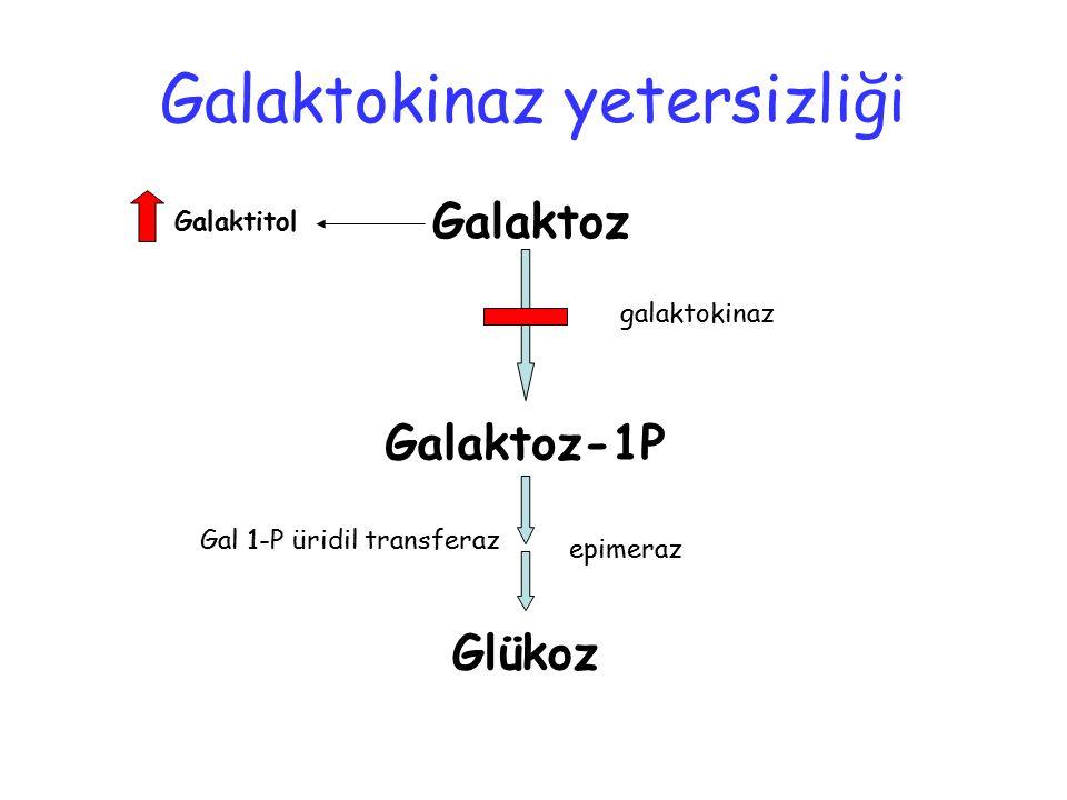 Galaktokinaz yetersizliği