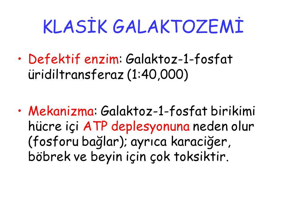KLASİK GALAKTOZEMİ Defektif enzim: Galaktoz-1-fosfat üridiltransferaz (1:40,000)