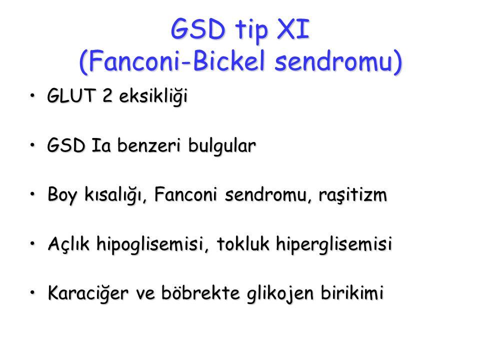 GSD tip XI (Fanconi-Bickel sendromu)