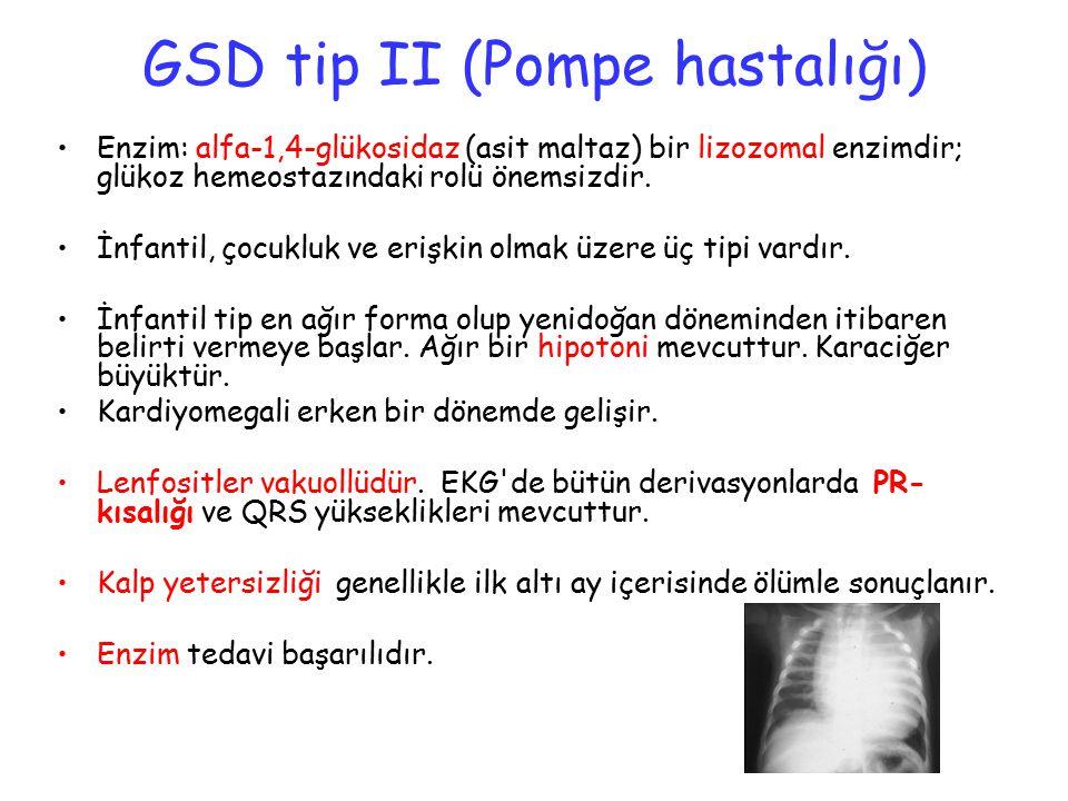 GSD tip II (Pompe hastalığı)