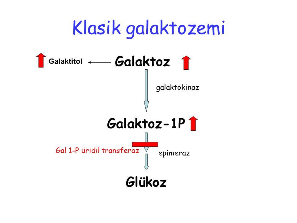 Klasik galaktozemi Galaktoz Galaktoz-1P Glükoz Galaktitol galaktokinaz