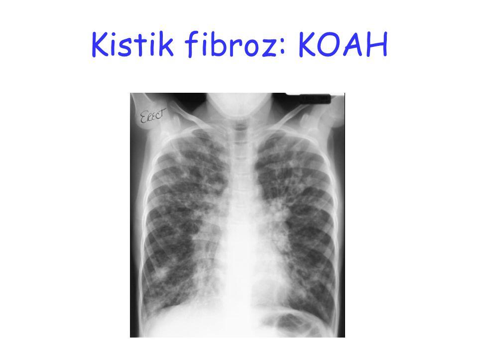 Kistik fibroz: KOAH