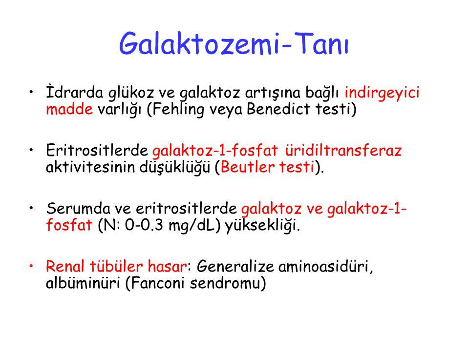 Galaktozemi-Tanı İdrarda glükoz ve galaktoz artışına bağlı indirgeyici madde varlığı (Fehling veya Benedict testi)