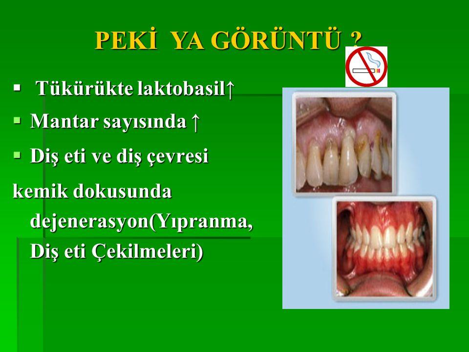 PEKİ YA GÖRÜNTÜ . Tükürükte laktobasil↑ Mantar sayısında ↑ Diş eti ve diş çevresi.