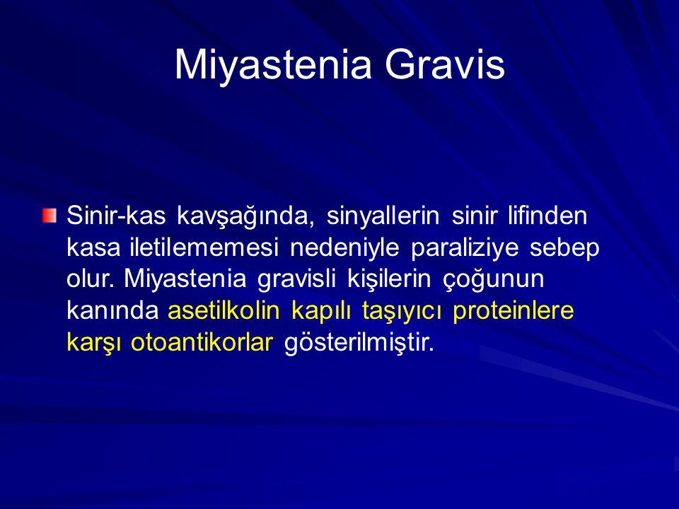 Miyastenia Gravis