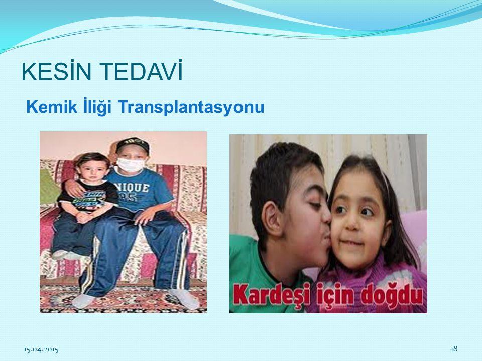 KESİN TEDAVİ Kemik İliği Transplantasyonu 12.04.2017