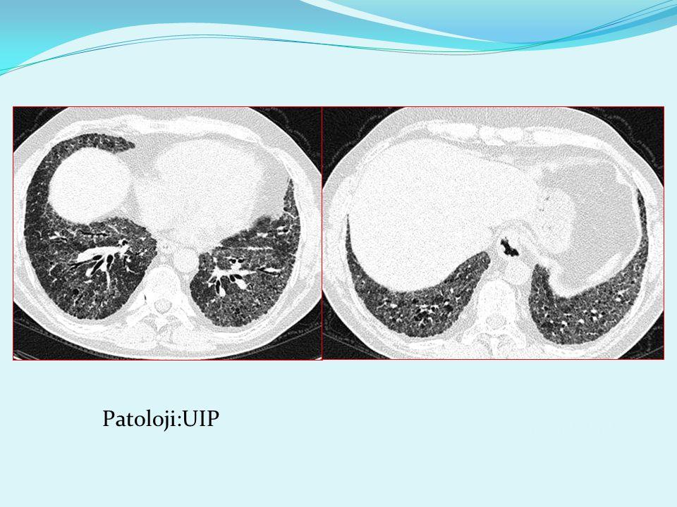 Patoloji:UIP 3259230 mustafakırat