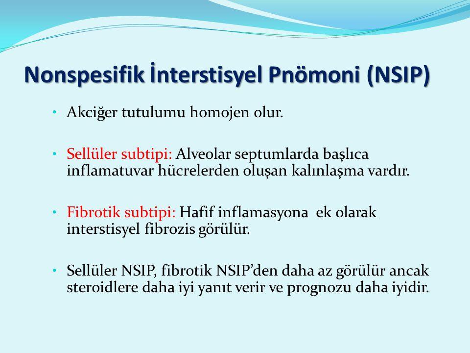 Nonspesifik İnterstisyel Pnömoni (NSIP)