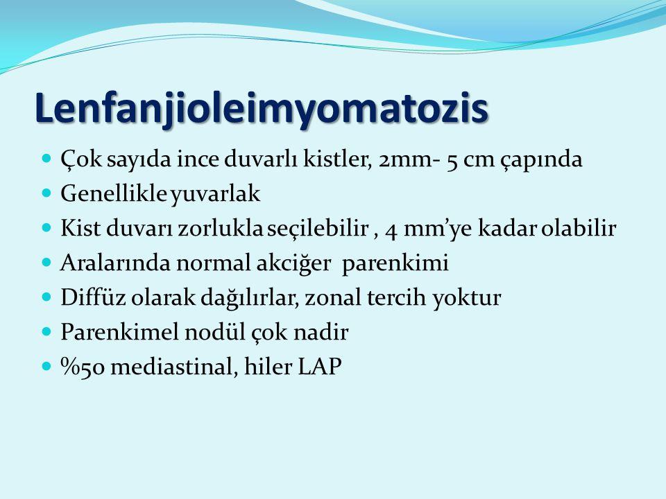 Lenfanjioleimyomatozis