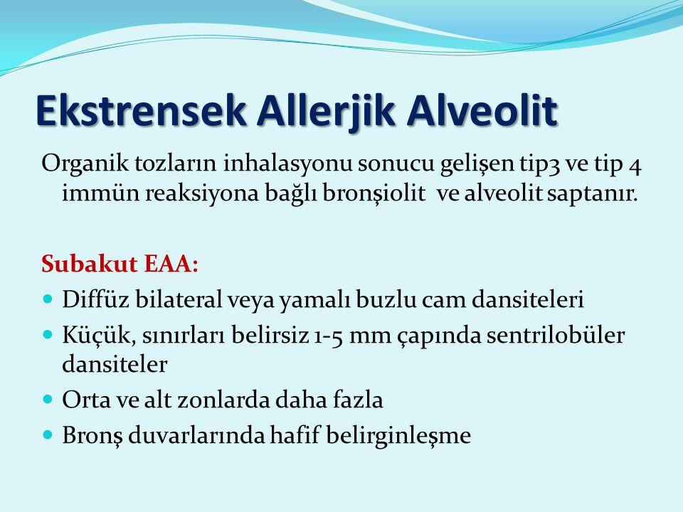Ekstrensek Allerjik Alveolit