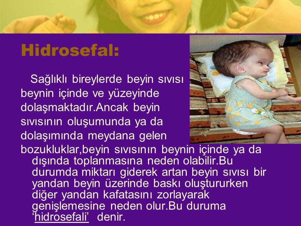 Hidrosefal: Sağlıklı bireylerde beyin sıvısı