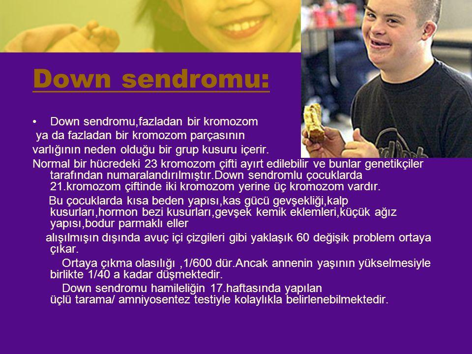 Down sendromu: Down sendromu,fazladan bir kromozom
