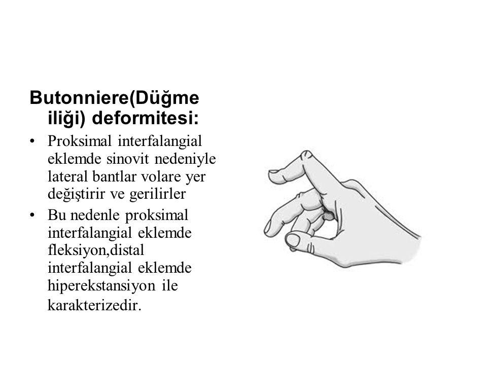 Butonniere(Düğme iliği) deformitesi:
