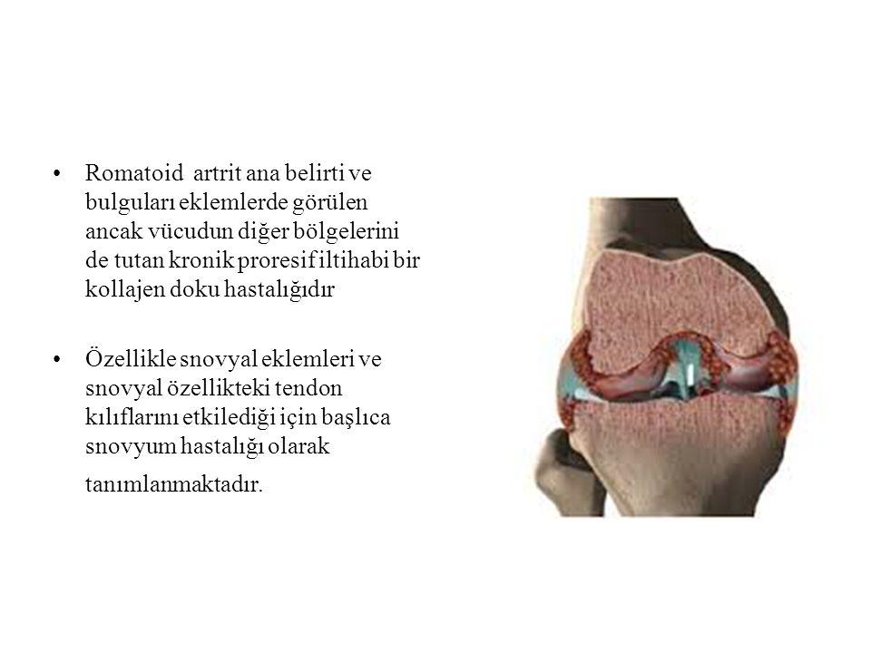 Romatoid artrit ana belirti ve bulguları eklemlerde görülen ancak vücudun diğer bölgelerini de tutan kronik proresif iltihabi bir kollajen doku hastalığıdır