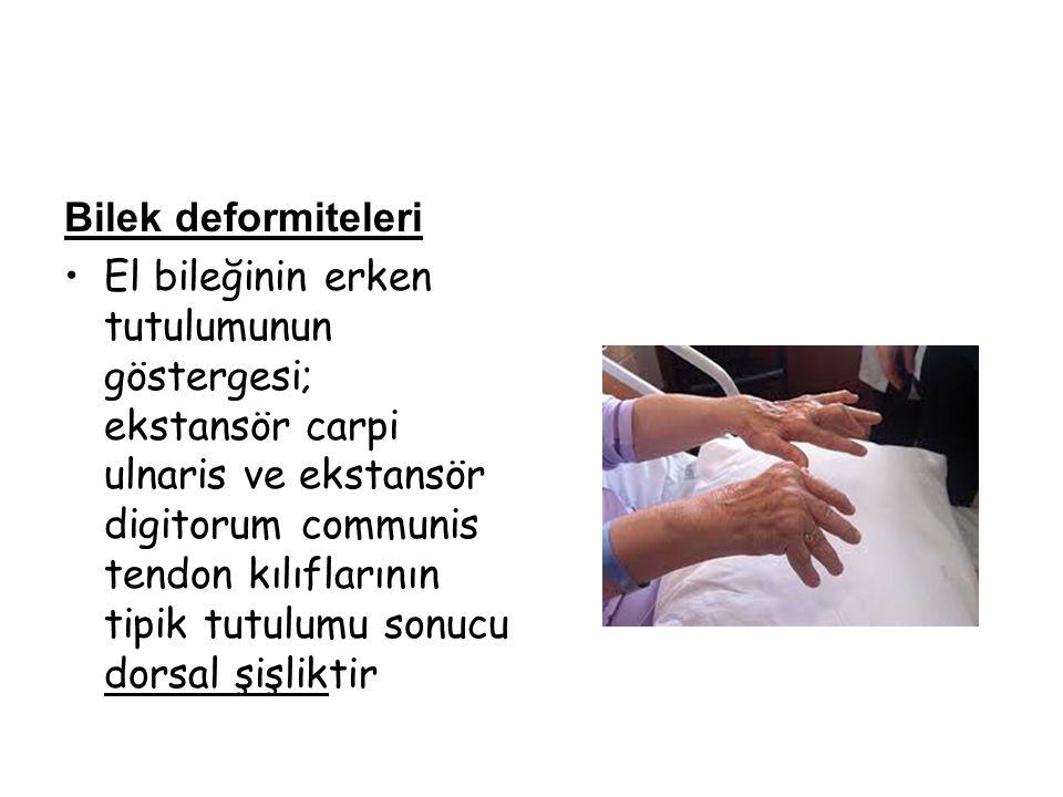 Bilek deformiteleri