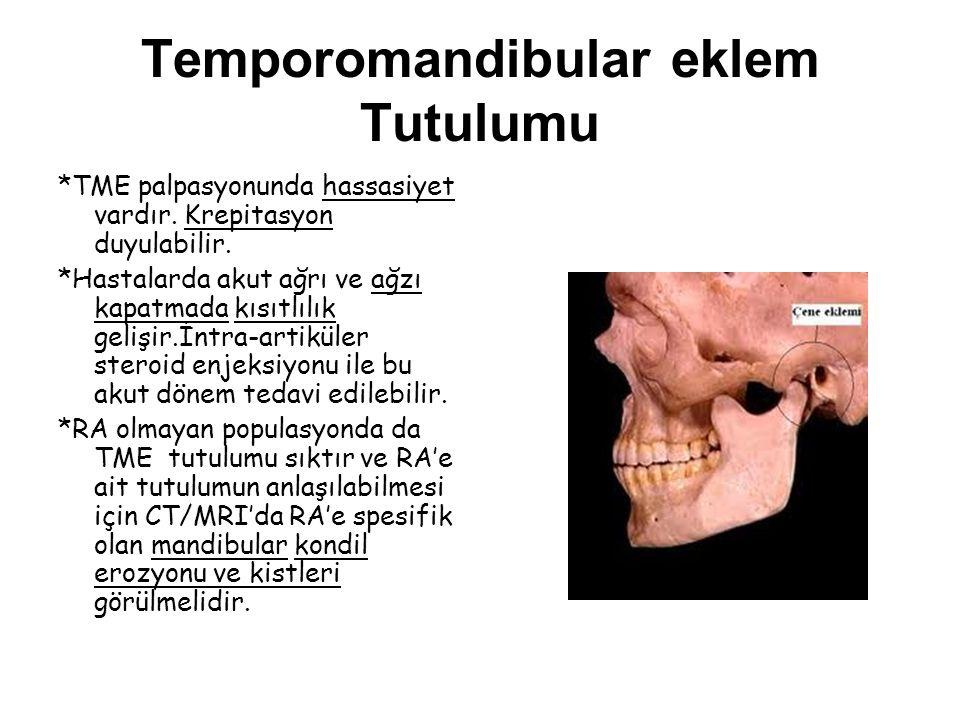 Temporomandibular eklem Tutulumu