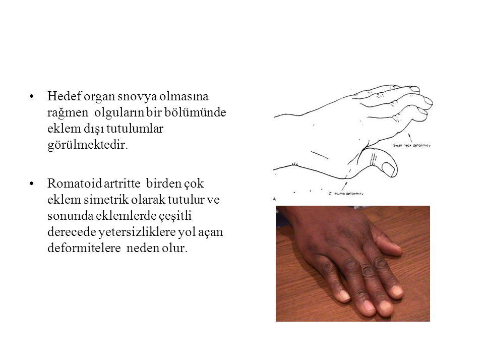 Hedef organ snovya olmasına rağmen olguların bir bölümünde eklem dışı tutulumlar görülmektedir.