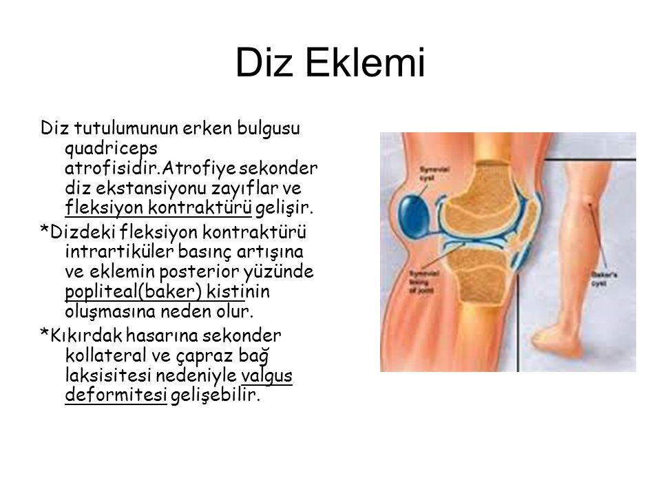 Diz Eklemi Diz tutulumunun erken bulgusu quadriceps atrofisidir.Atrofiye sekonder diz ekstansiyonu zayıflar ve fleksiyon kontraktürü gelişir.
