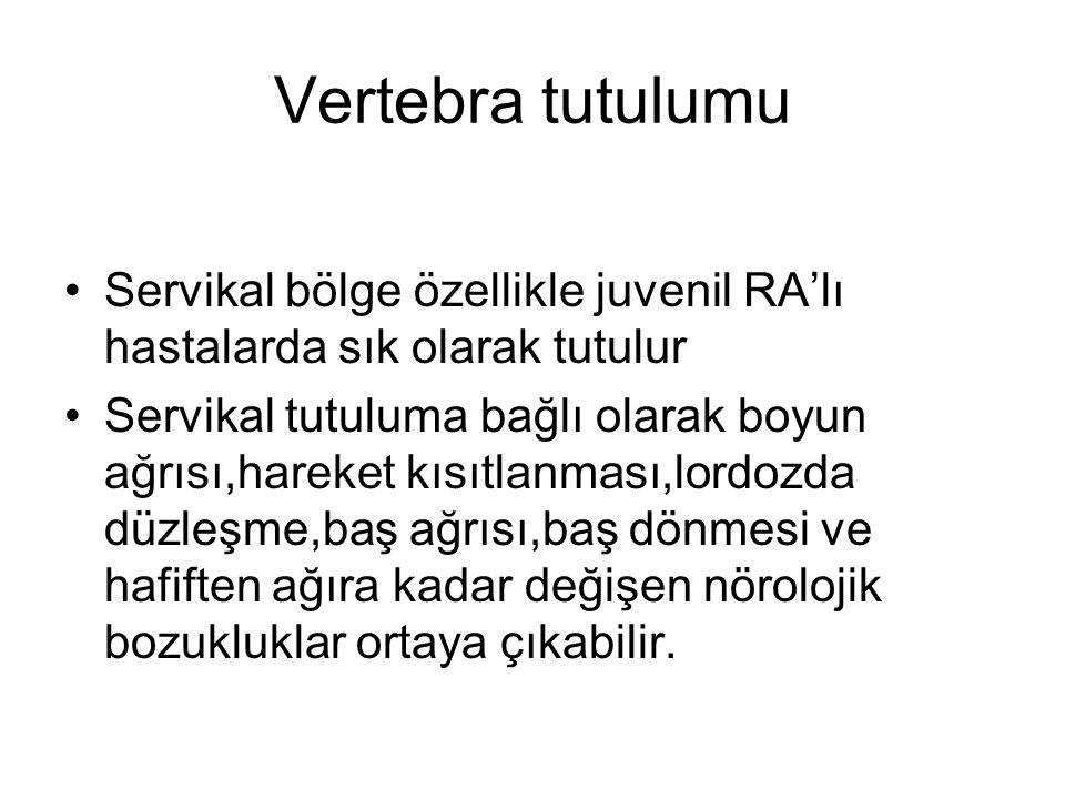 Vertebra tutulumu Servikal bölge özellikle juvenil RA'lı hastalarda sık olarak tutulur.