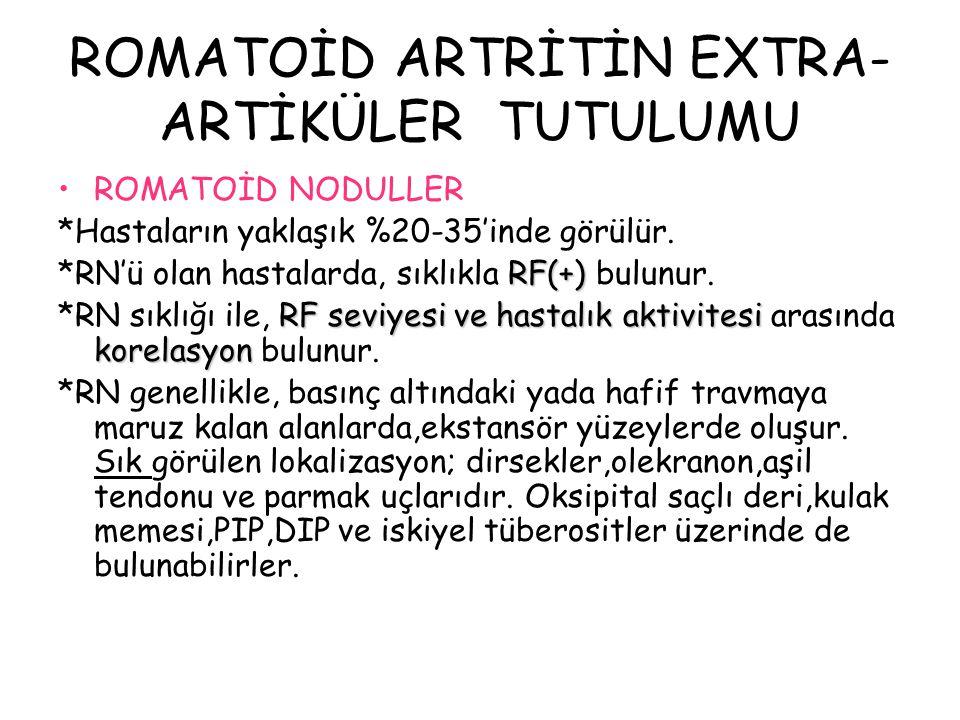 ROMATOİD ARTRİTİN EXTRA-ARTİKÜLER TUTULUMU