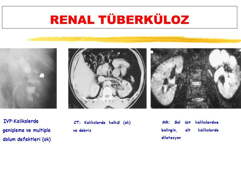 RENAL TÜBERKÜLOZ IVP:Kalikslerde genişleme ve multiple dolum defektleri (ok) CT: Kalikslerde kalkül (ok) ve debris.