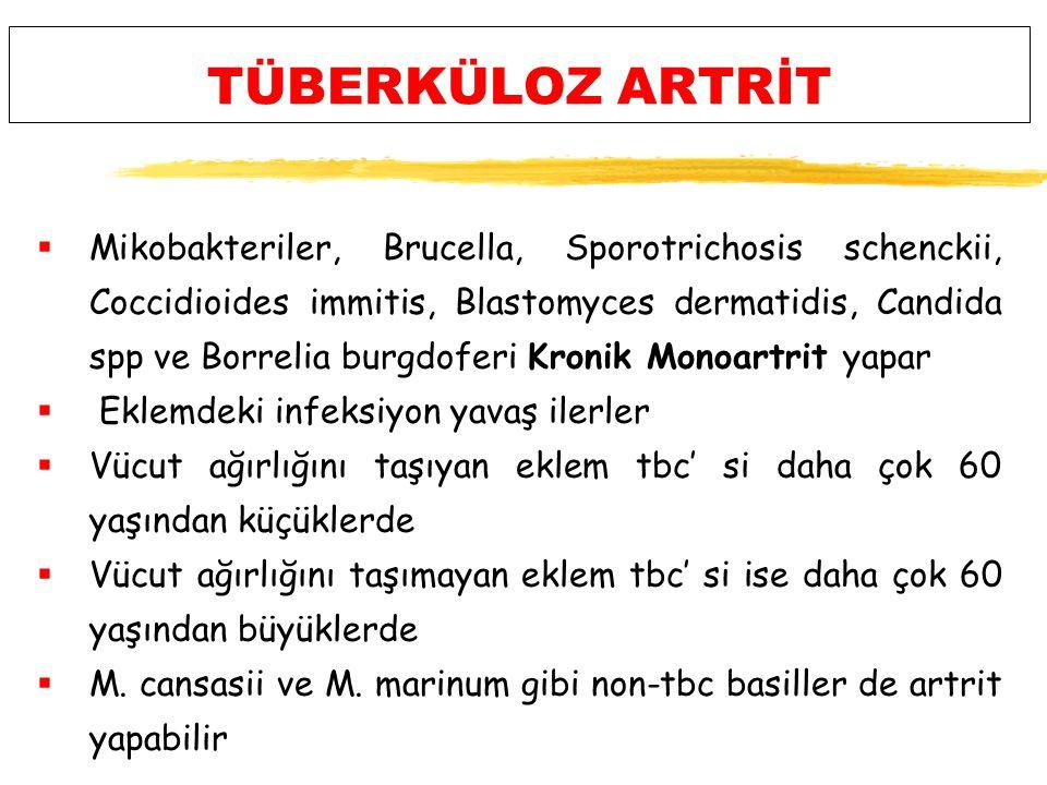TÜBERKÜLOZ ARTRİT