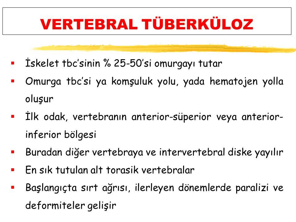 VERTEBRAL TÜBERKÜLOZ İskelet tbc'sinin % 25-50'si omurgayı tutar