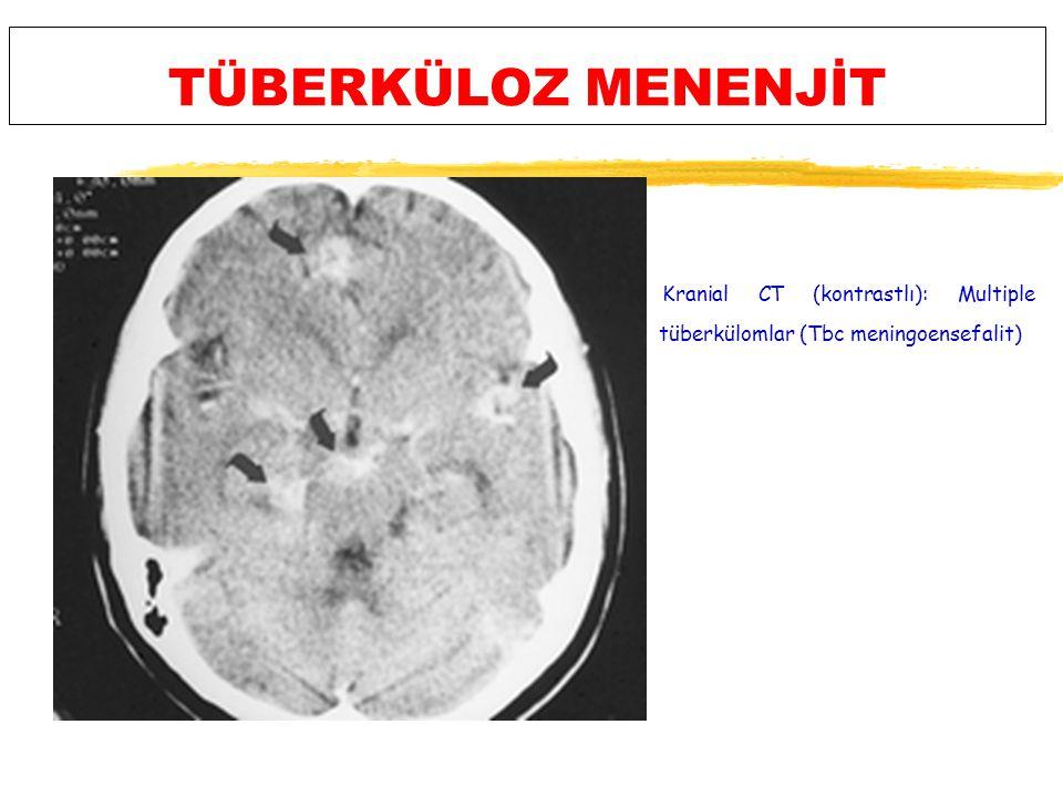 TÜBERKÜLOZ MENENJİT Kranial CT (kontrastlı): Multiple tüberkülomlar (Tbc meningoensefalit)