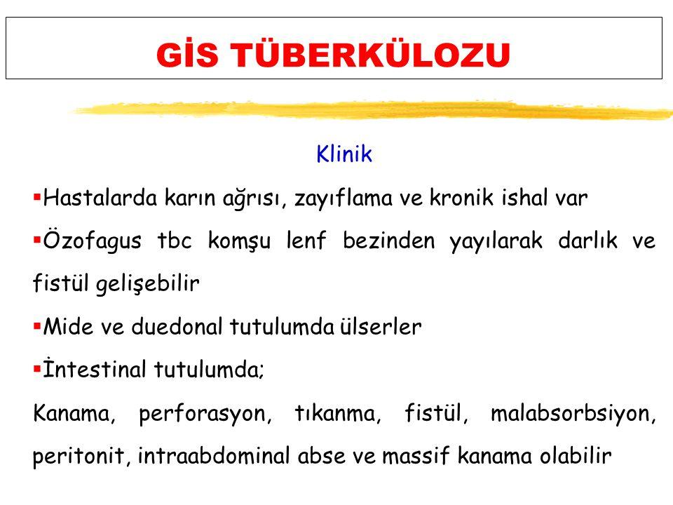 GİS TÜBERKÜLOZU Klinik
