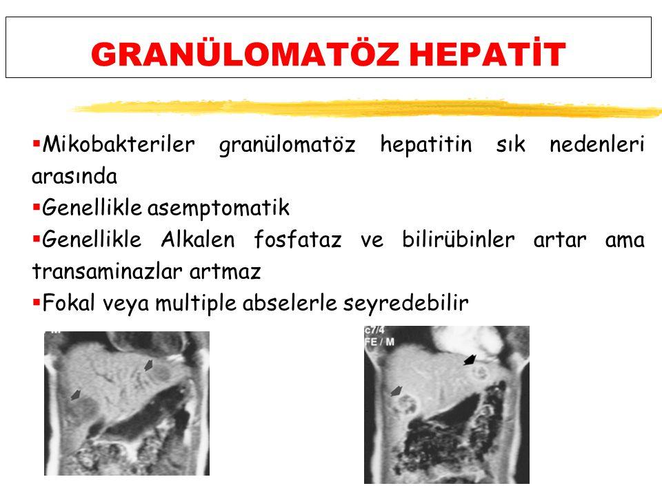 GRANÜLOMATÖZ HEPATİT Mikobakteriler granülomatöz hepatitin sık nedenleri arasında. Genellikle asemptomatik.