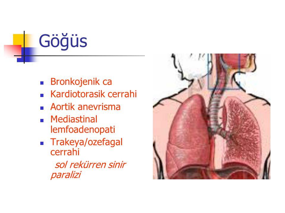 Göğüs Bronkojenik ca Kardiotorasik cerrahi Aortik anevrisma