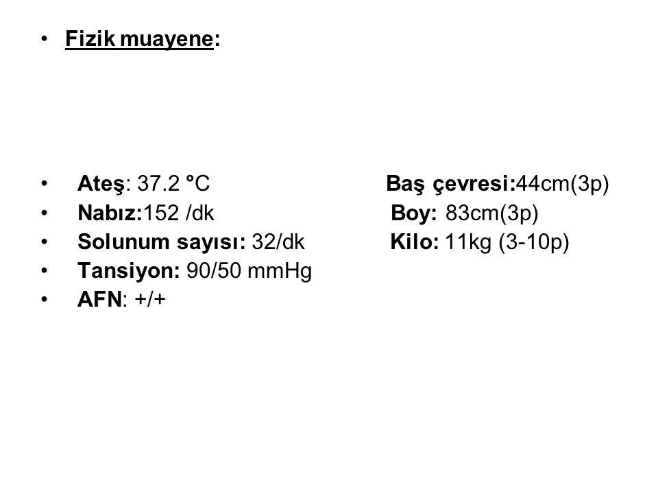 Fizik muayene: Ateş: 37.2 °C Baş çevresi:44cm(3p) Nabız:152 /dk Boy: 83cm(3p)