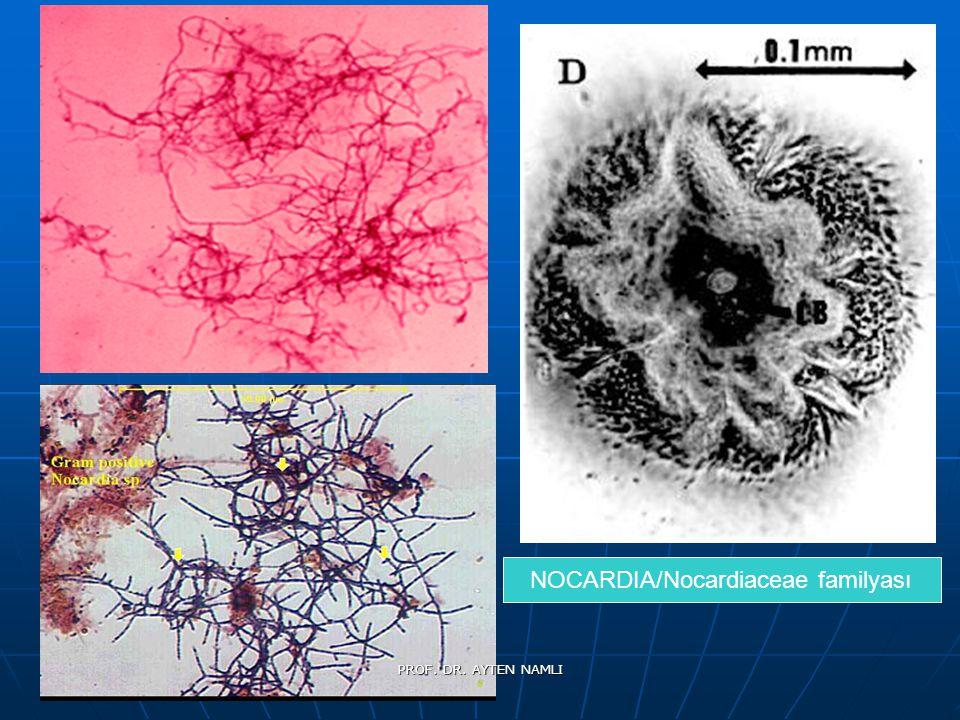 NOCARDIA/Nocardiaceae familyası