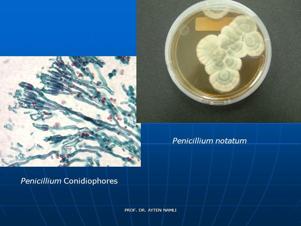 Penicillium Conidiophores